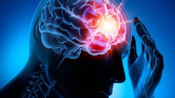 ¿Cómo prevenir un infarto cerebral?