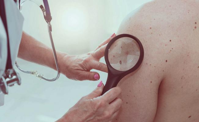 ¿El cáncer de piel aumenta con la edad?