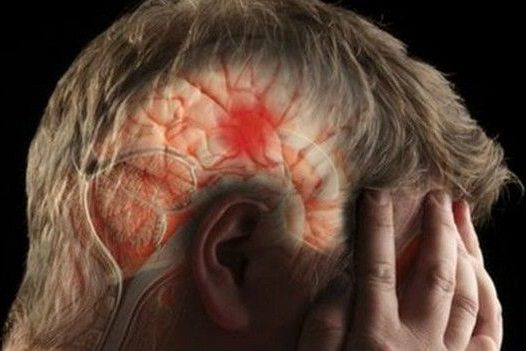 La demencia puede ser provocada por un infarto cerebral