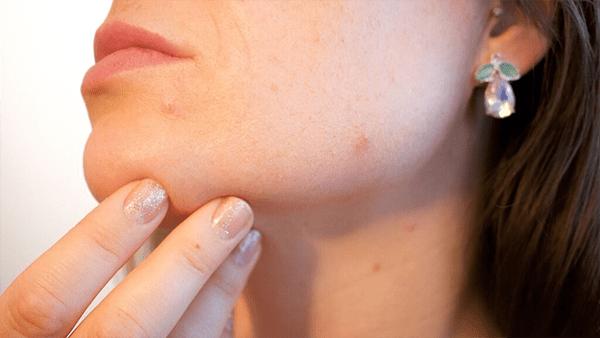 Los remedios caseros no son buenos para el acné