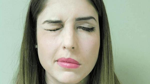 ¿Qué es una parálisis facial y cómo prevenirla?