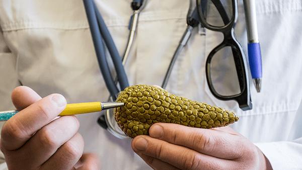 Cáncer de páncreas: La enfermedad silenciosa